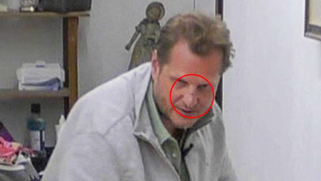 Hier ist der Cut auf der Nase von Jens Büchner zu sehen. Woher kommt die Verletzung?