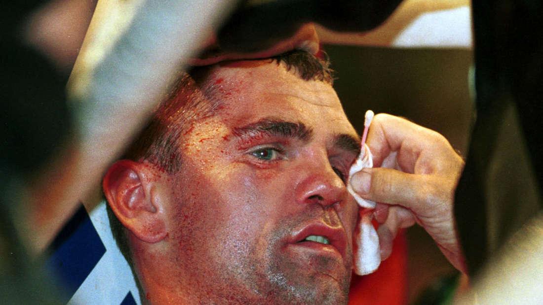 Sven Ottke musste während seiner Karriere als Boxer viel einstecken: Im Dschungelcamp ist er nun zusammengebrochen.