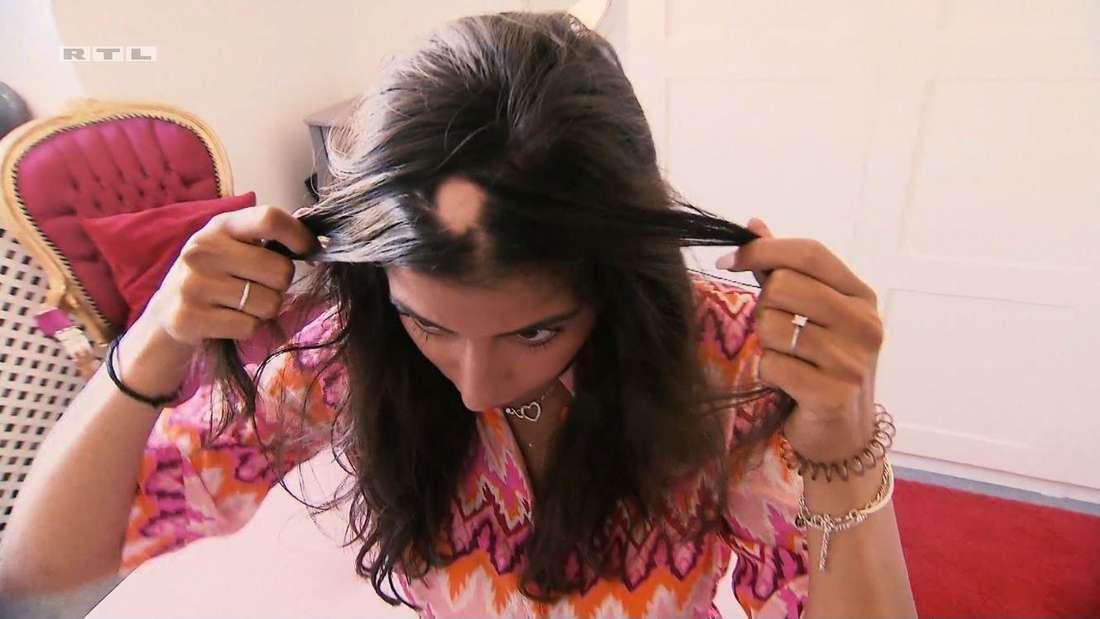 Eva Benetatou zeigt zum ersten Mal das kreisrunde Loch in ihrer Haarpracht