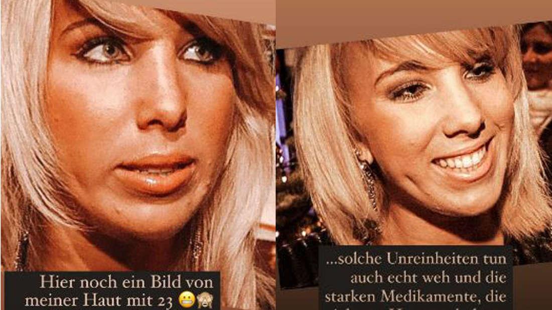 Sommerhaus der Stars: Zwei Bilder von Annemarie Eilfeld aus früheren Jahren mit Pickel