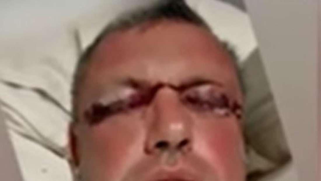 Andreas Robens liegt mit zugeschwollenen Augen im Krankenhausbett