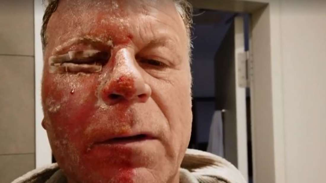 Jenke von Wilmsdorff zeigt sein halbseitig operiertes Gesicht am dritten Tag nach der OP.