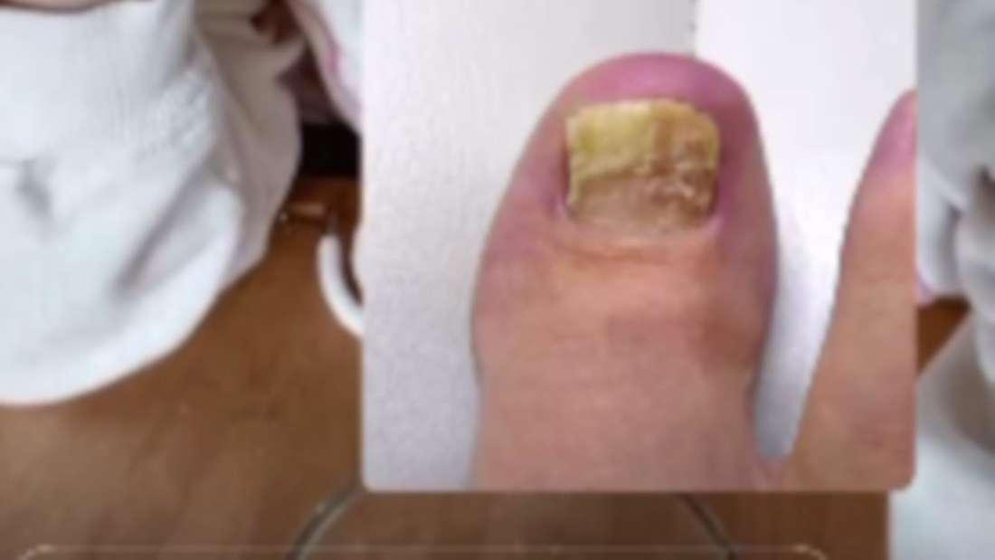 Daniela Katzenberger verkneift sich das Lachen und hat ein Foto eines Fußes mit Pilzinfektion dazu gepostet.