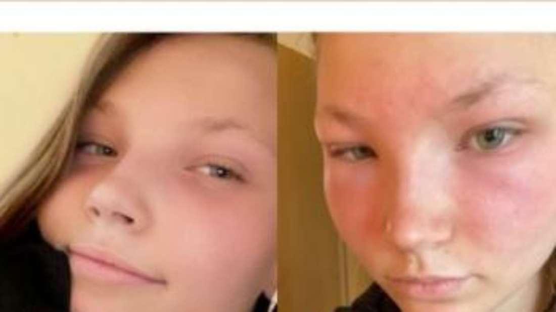 Romy hatte bei GNTM mit einer allergischen Reaktion zu kämpfen - Ärzte rieten ihr zu einer Pause.