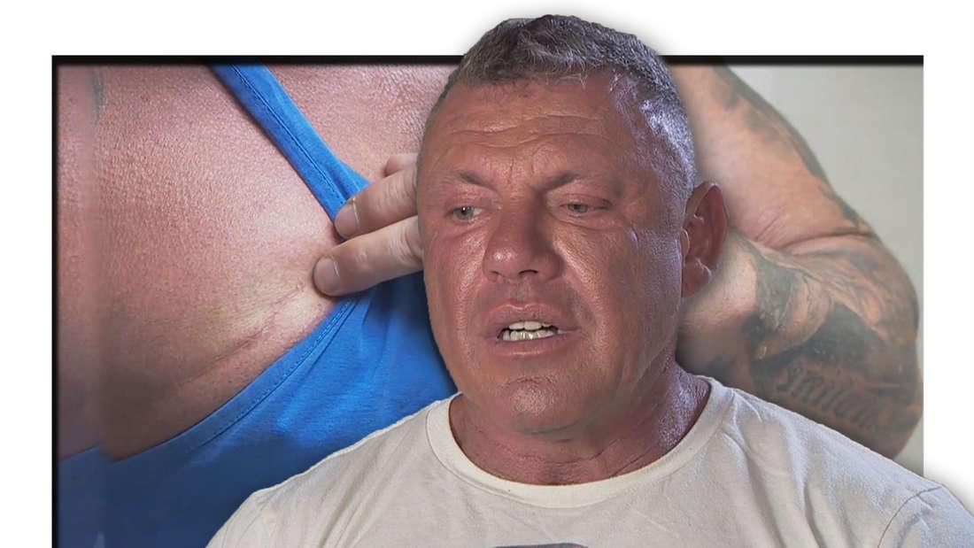 Fotomontage: Andreas Robens schaut nach unten, im Hintergrund zeigt er seine Narbe.