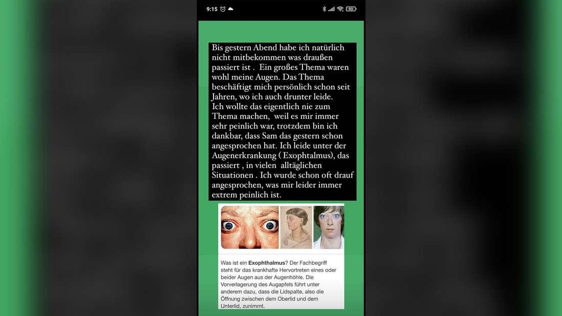 """Rafi Rachek spricht im Netz nach seiner Zeit bei """"Promi Big Brother"""" über seine Augenkrankheit."""