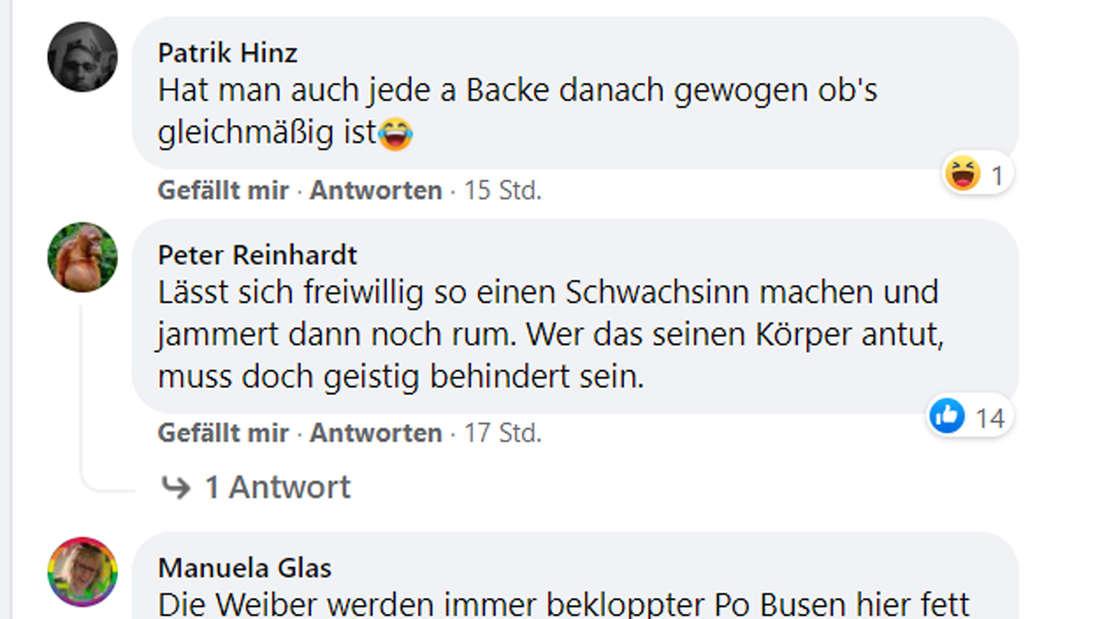 Auf Facebook lästern ihre Fans über den Eingriff