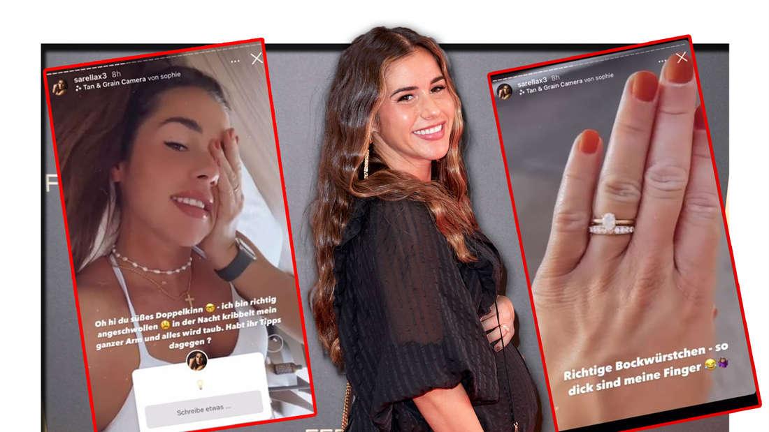 Sarah Engels lächelt, Screenshots, auf denen sie ihre Wassereinlagerungen zeigt